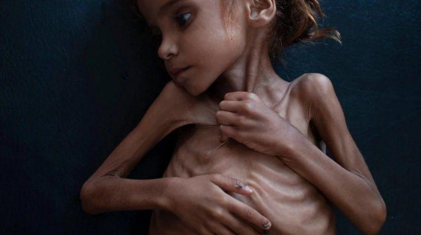 Murió Amal, la nena que se convirtió en símbolo del hambre en Yemen