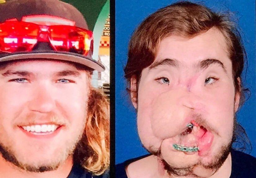 Su vida cambió tras recibir un trasplante de cara