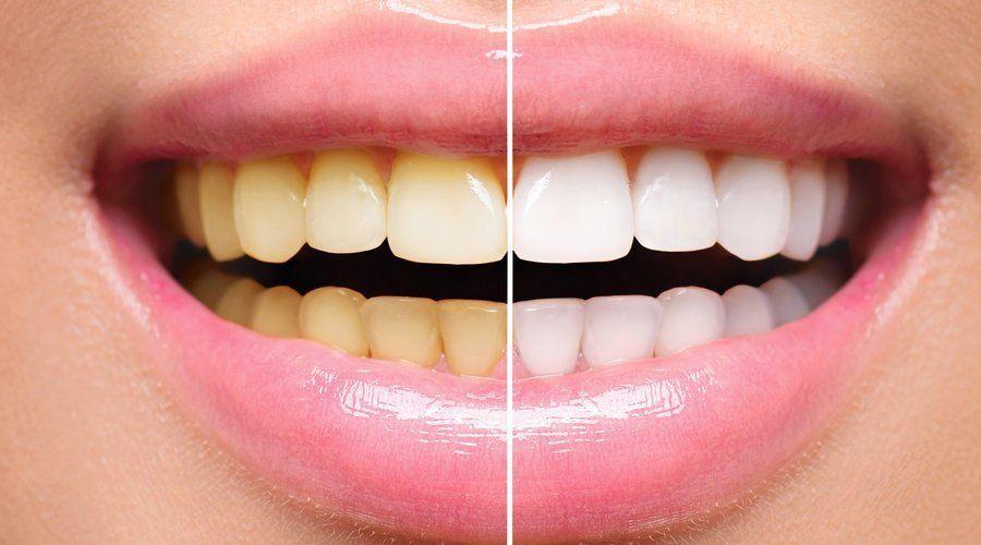 """¿Harto de luchar contra """"los dientes amarillos""""? Crearon la solución"""