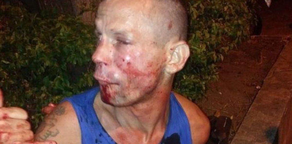 Le quiso robar el celular a una luchadora de UFC con un arma de cartón y casi termina en el hospital