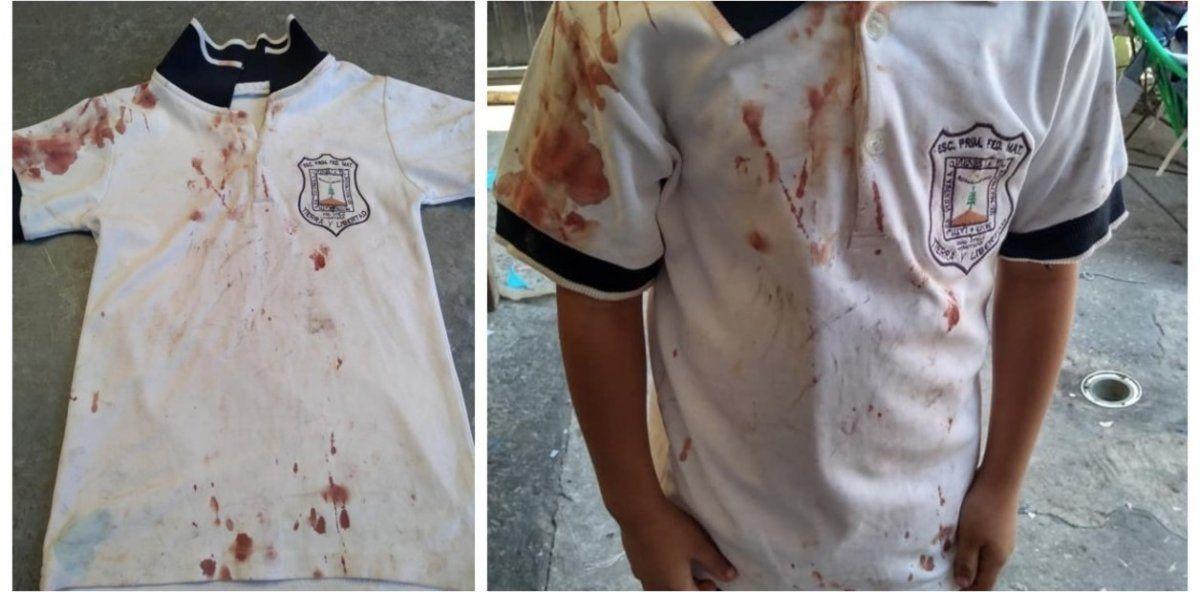 "La ""chomba ensangrentada"": la terrible foto que publicó la mamá de un nene que sufre bullying"