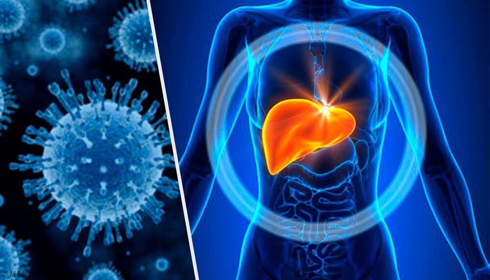 Aumentan los casos de hepatitis A en Florida, confirman 690 casos