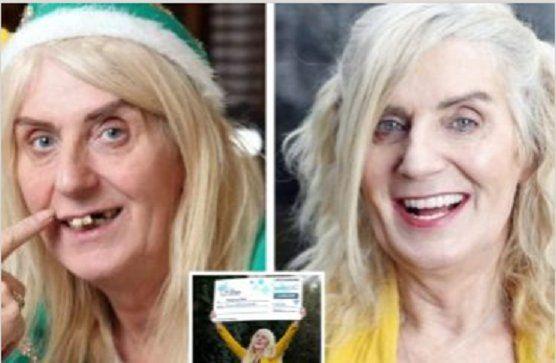 Muere la mujer que gastó 3,5 millones de dólares en cirugías estéticas tras ganar la lotería