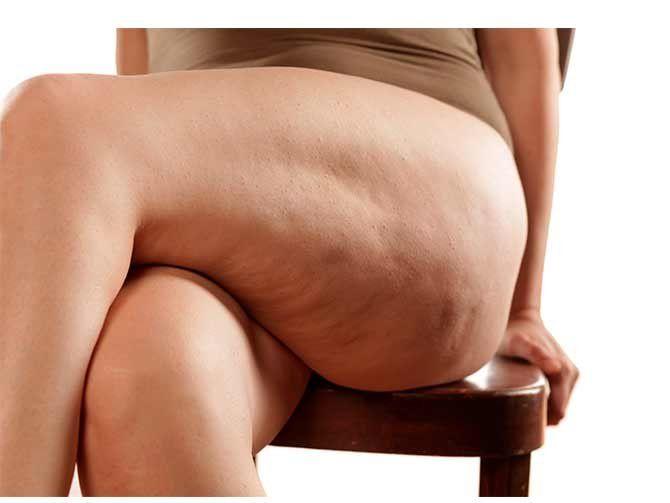 13 tips para eliminar la celulitis
