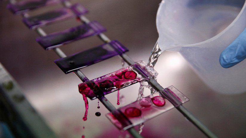 Nuevo análisis de sangre puede predecir si vas a morir en los próximos 10 años