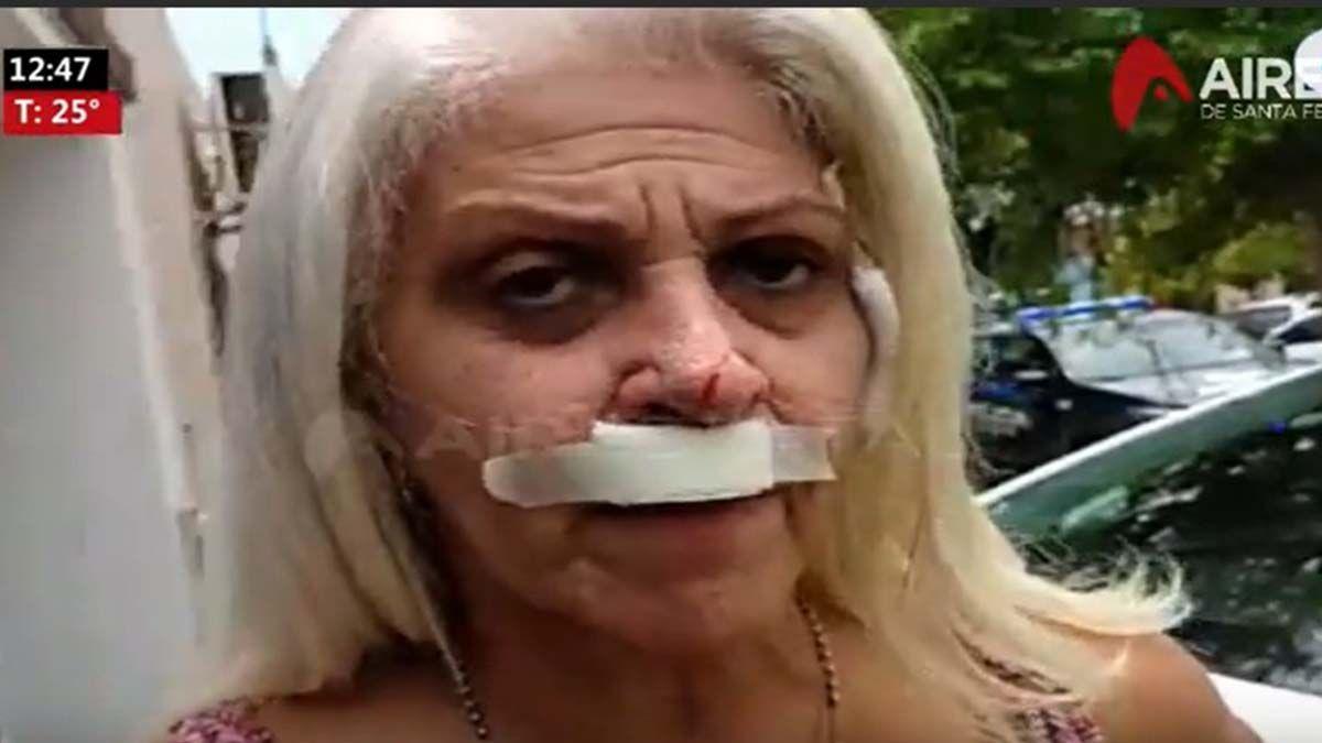 Violenta entradera en Guadalupe Oeste: Me rompieron la boca con un punzón, son mis vecinos