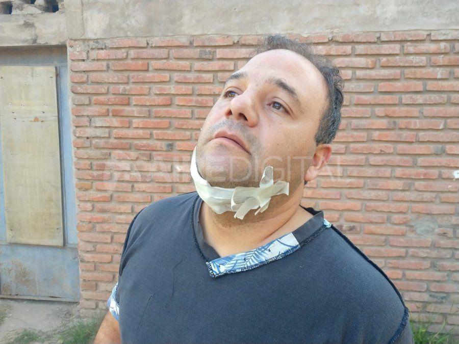 Llevate todo pero no me lastimes: el relato del remisero asaltado y apuñalado en barrio Centenario
