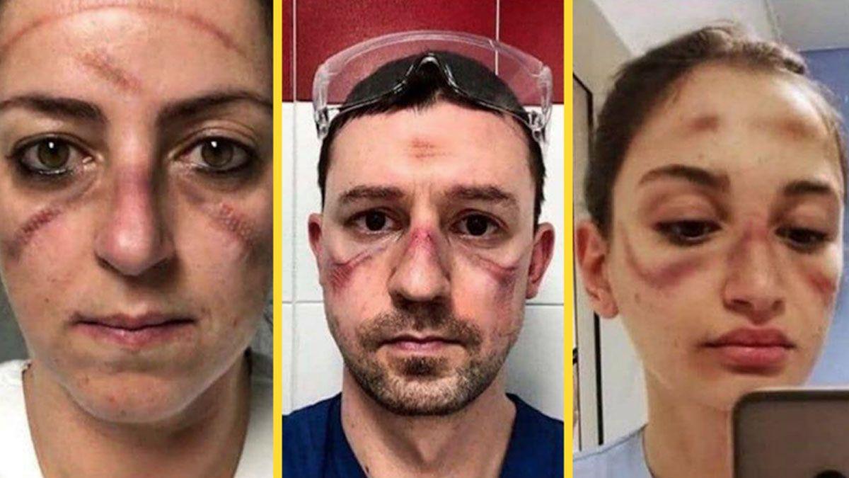 FOTOS: Las impactantes imágenes de médicos que luchan contra coronavirus en Italia