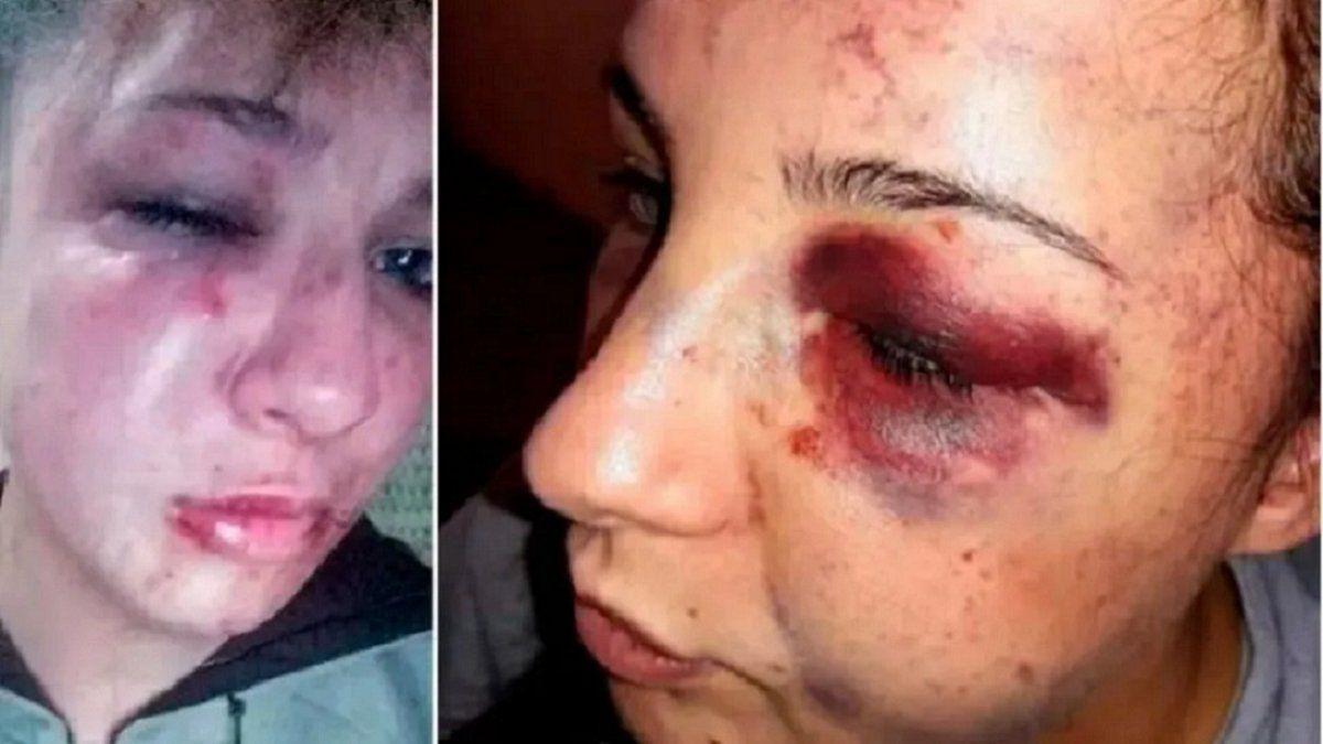 Un ex preso desfiguró a trompadas y patadas a su ex y le robó
