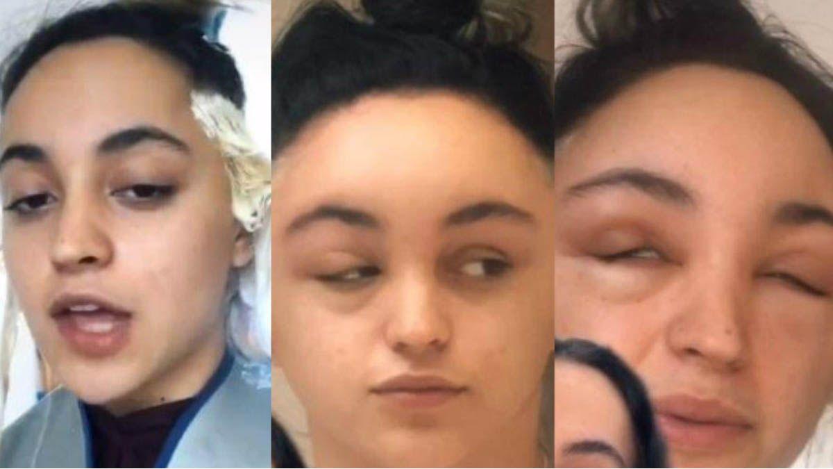 Una joven casi pierde la vida tras pintarse el cabello