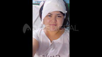 Carolina Ñañes luego de la intervención quirúrgica.