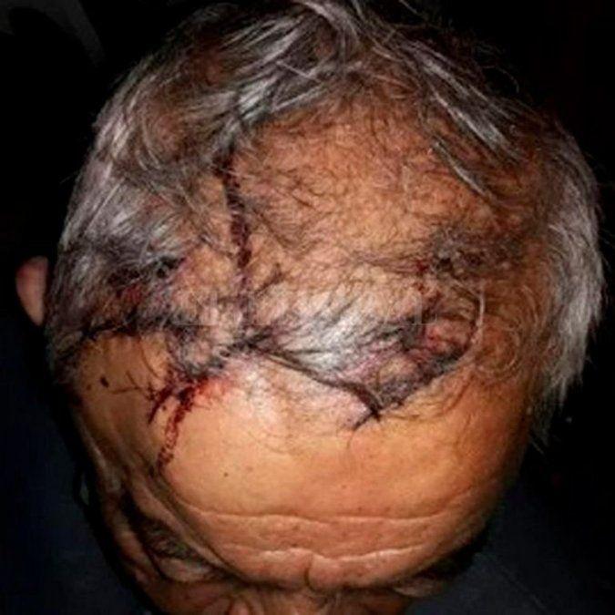 Al hombre de 74 años debieron cerrarle las heridas con 18 puntos de sutura