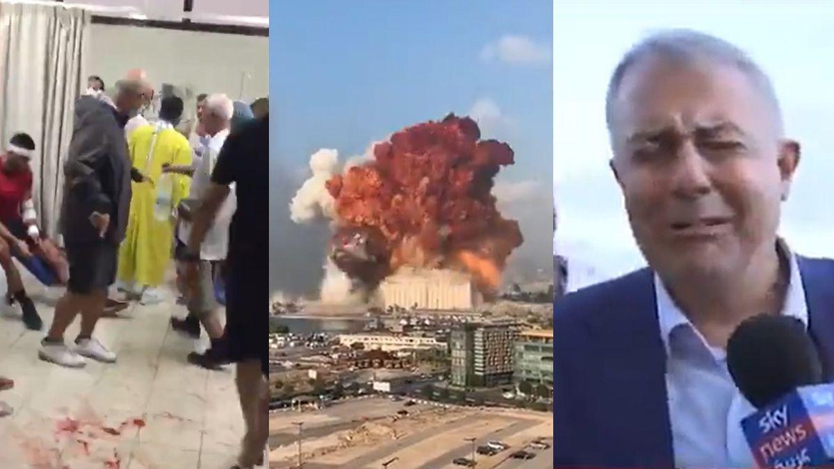 La explosión en Beirut dejó desgarradoras imágenes.