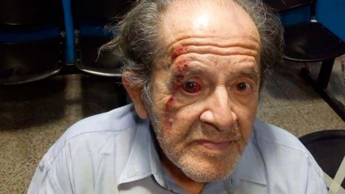Un jubilado recibió una fuerte golpiza de un guardia de seguridad de un supermercado en Córdoba por llevar las bolsas hasta su auto en un carrito.