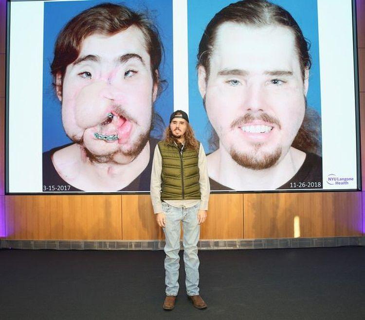 Cameron ahora se prepara para hacer una normal, después de dos años de vivir con el rostro deforme (Foto: Getty)