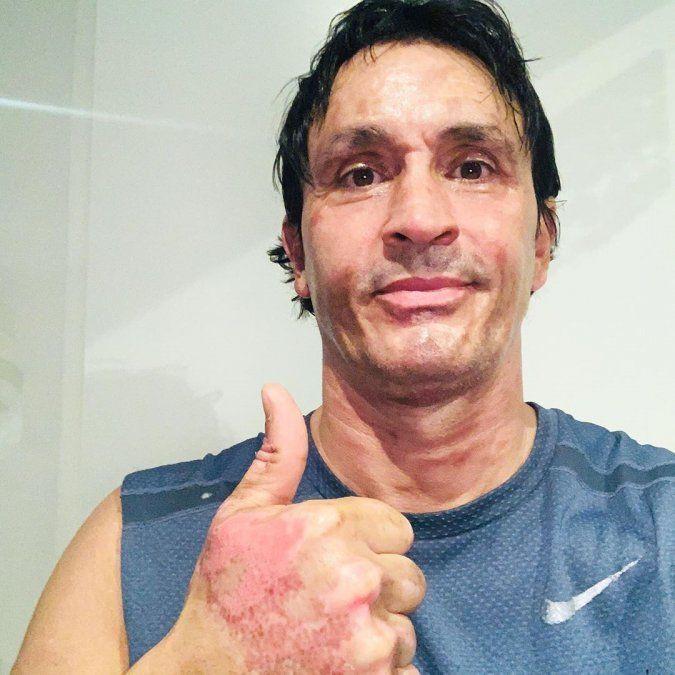 Así quedó Sebastián Estevanez tras el accidente doméstico.
