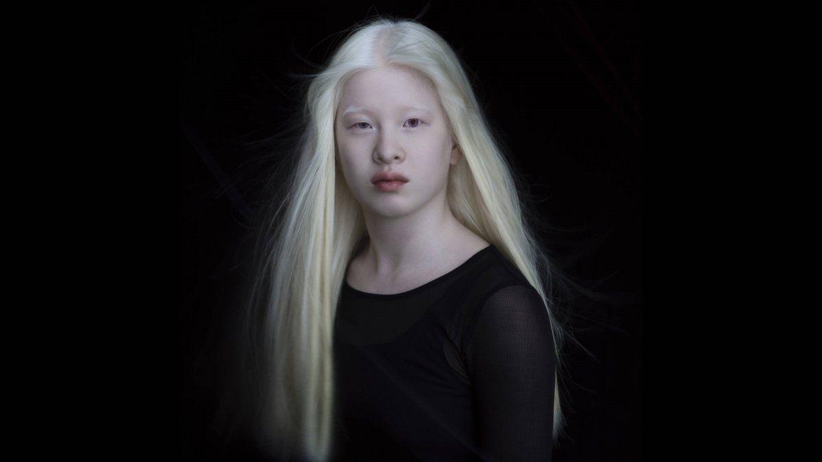 Se convirtió en modelo internacional tras ser abandonada de bebé por su albinismo