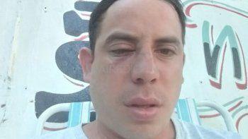 Jorge es verdulero y el martes recibió una feroz golpiza por parte de seis personas por adeudar 100 pesos de la cuota de un préstamo. Le quebraron la nariz, la mandíbula y le dejaron hematomas en todo el cuerpo.