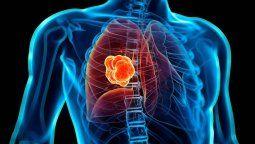 Cada 17 de noviembre se conmemora el día del cáncer de pulmón y se recuerda la importancia sobre la detección temprana y los tratamientos oportunos de uno de los cánceres más mortales y comunes a nivel mundial.