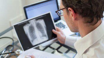 Los resultados de las pruebas realizadas en Santa Fe para tratar a pacientes graves con covid son sorprendente: lograron disminuir la mortalidad del 80% al 40%.