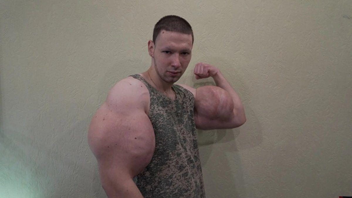 En momento en que le explotan los brazos al popeye ruso durante una pelea de MMA