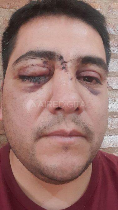 Así quedó el rostro de Daniel tras la agresión. Tuvo que ser intervenido quirúrgicamente en el hospital J.M.Cullen.