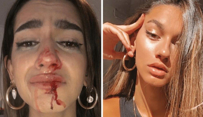 Una influencer trans sufrió una brutal golpiza en la calle