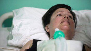 Ana Estrada, la mujer que sufre una enfermedad incurable en una imagen tomada el 7 de febrero de 2020