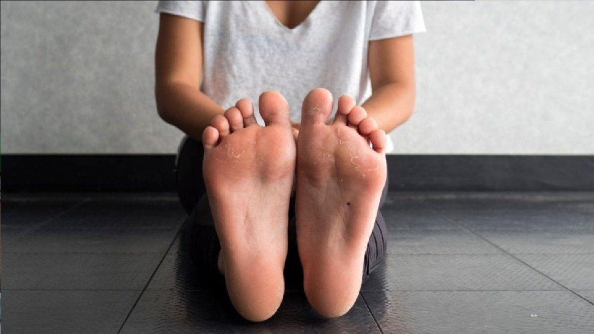 El mejor ingrediente natural para eliminar los callos de los pies