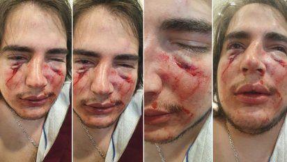 Imputaron a dos rugbiers por la golpiza al adolescente en Córdoba
