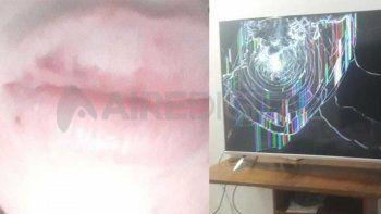 Una joven de 23 años denunció que su pareja la molió a palos durante dos años